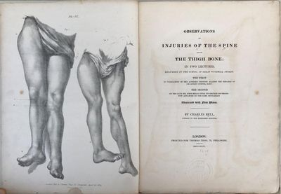 Observations on injuries of the spine and of the thigh bone: in two lectures, delivered in the School of Great Windmill Street. The first in vindication of the author's opinions against the remarks of Sir Astley Cooper, Bart. The second on the late Mr. John Bell's title to certain doctrines now advanced by the same gentleman., BELL, Sir Charles (1774-1842).